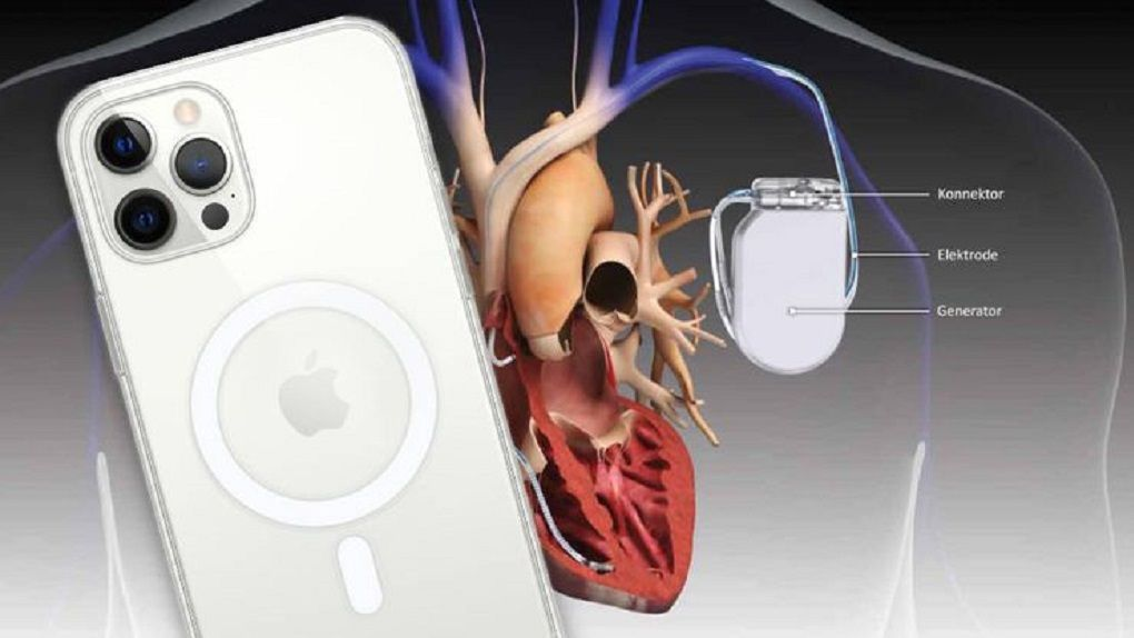 Keep these Apple gadgets away from pacemakers